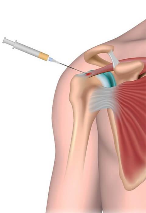 terapia del dolore - infiltrazioni